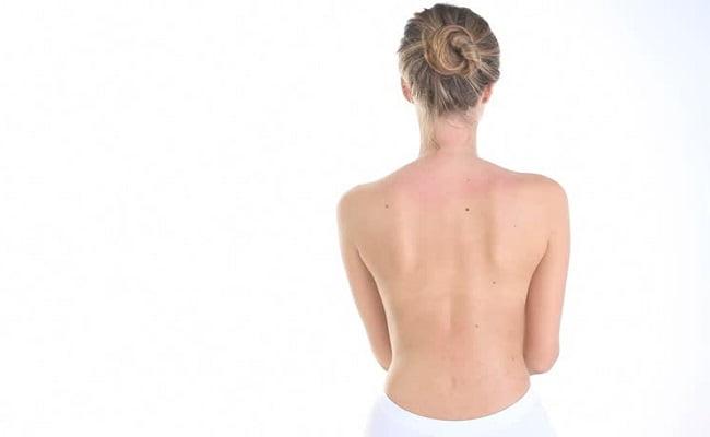 Rimedi della Nonna e trattamenti naturali per l'acne sulla schiena
