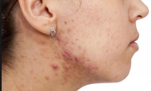 diversi tipi di acne