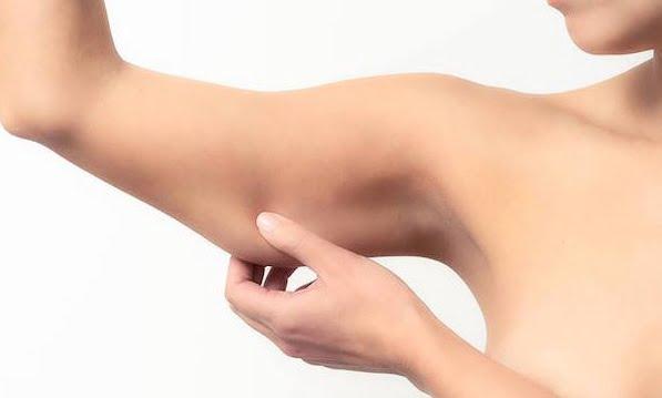 braccia flaccide rimedi naturali