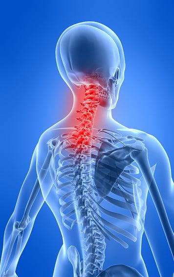 Come ridurre i dolori cervicali