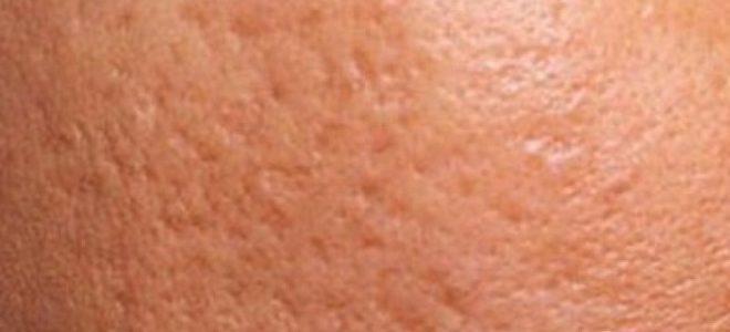 cicatrici-acne