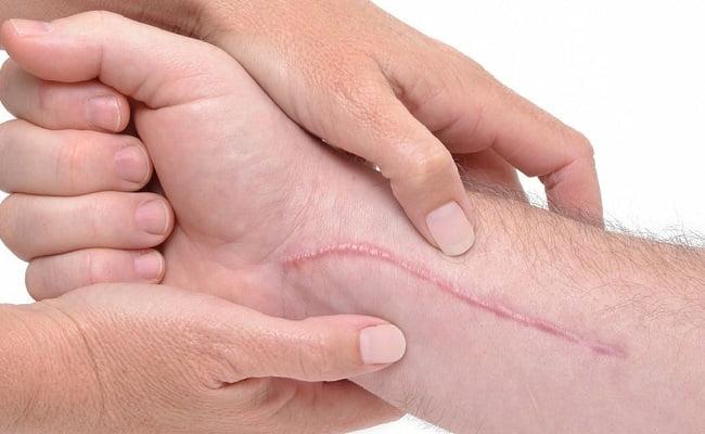 Cosa mettere sulle cicatrici per farle sparire