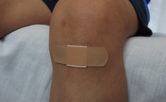 Come guarire dalle abrasioni della pelle con i rimedi naturali