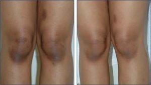 ricette per sbiancare le ginocchia