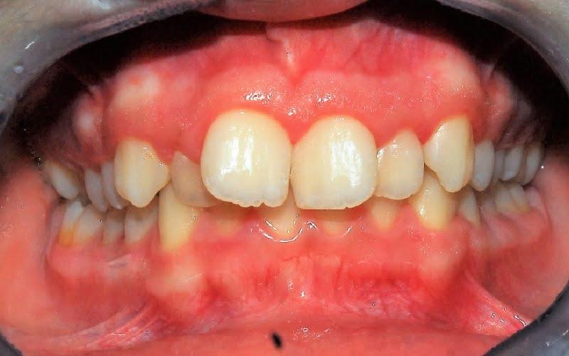 Denti storti: cause, conseguenze e perché è importante curarli