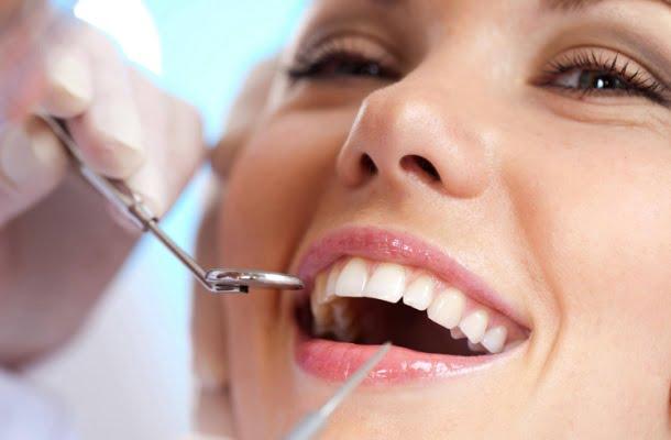 Come rimuovere naturalmente placca e tartaro dai denti