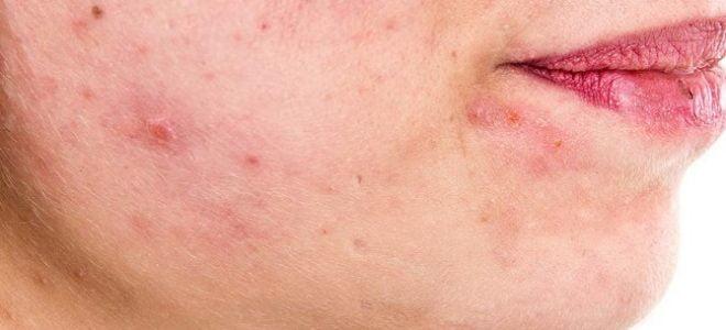 dermatite seborroica ecco quali sono i migliori rimedi