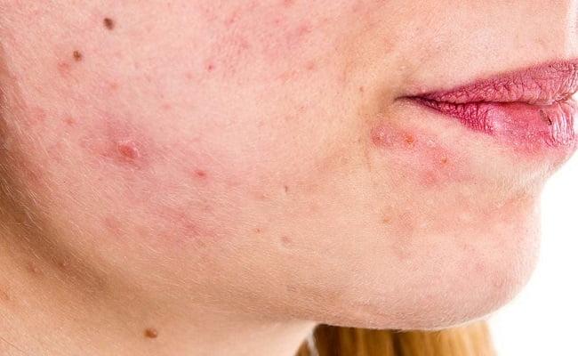 Dermatite seborroica: ecco quali sono i migliori rimedi della Nonna