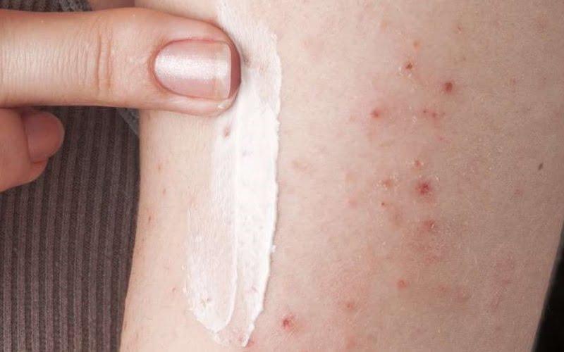 Rimedi naturali della Nonna per combattere l'eczema