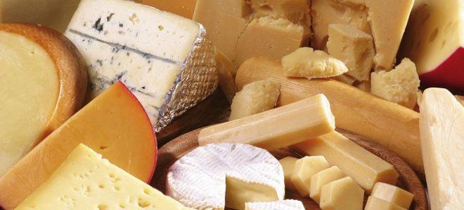 formaggio-fa-male-rimedinonna