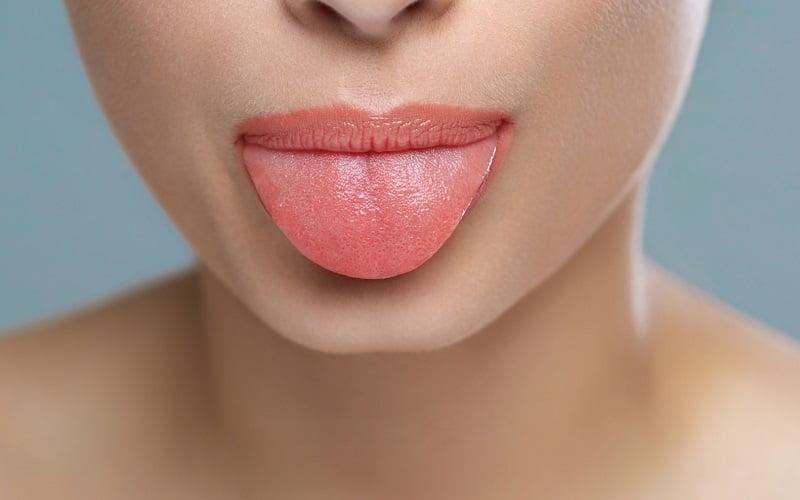 Infiammazione delle papille gustative: le cause e i migliori rimedi