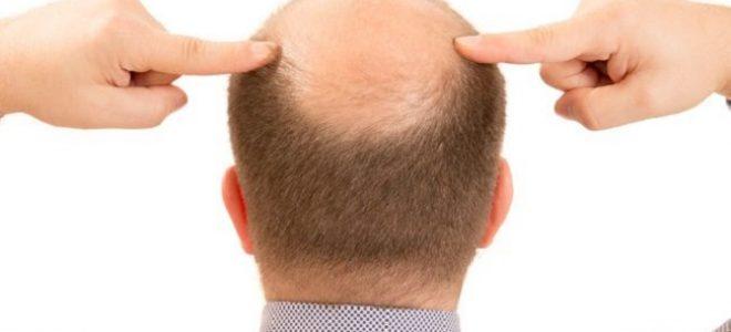 Maschere per capelli contro perdita con argilla bianca