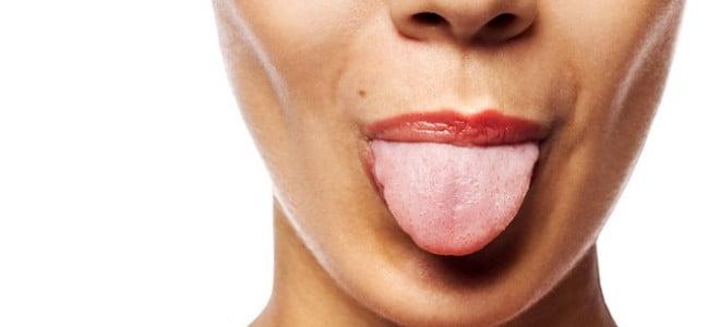rimedi-lingua-bianca