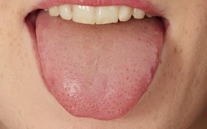 Rimedi per eliminare le piaghe sulla lingua