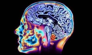Un cervello sano significa lunga vita!