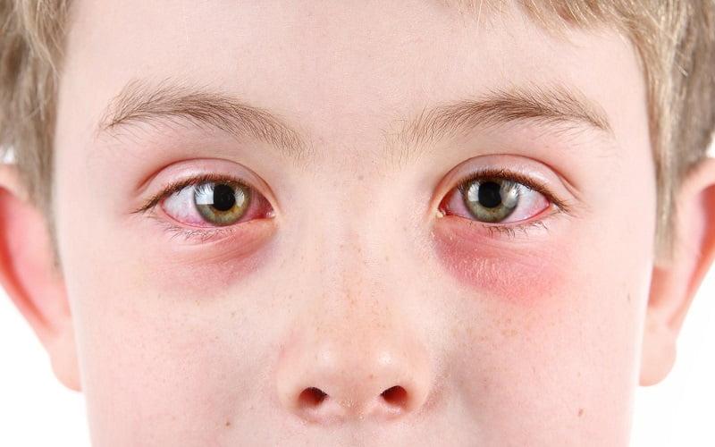 Rimedi della Nonna per la congiuntivite allergica