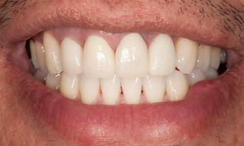 Consigli della nonna per non digrignare i denti (bruxismo)