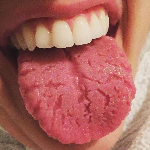 le piaghe sulla lingua: come compaiono da vicino