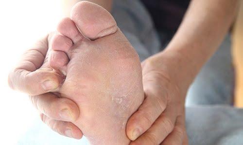 per il prurito ai piedi non c'è niente di meglio dei rimedi della nonna