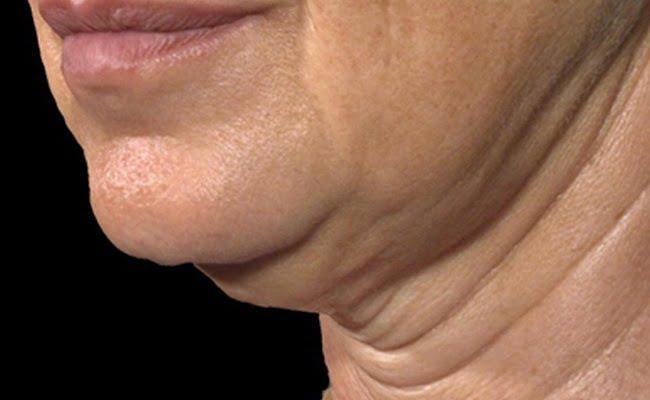 Rimedi naturali per la pelle cadente