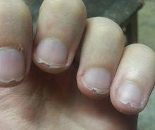 unghie-rotte-e-spezzate